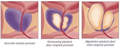 oorzaak prostaatvergroting