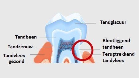 Doorsnede tand