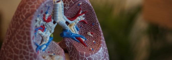 Vocht in longen