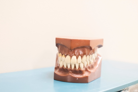 Vatbaarder voor hart- en vaatziekten met tandvleesproblemen